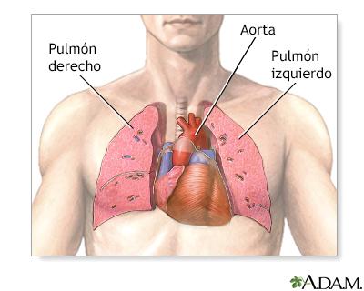 Trasplante de corazón y pulmón - Serie